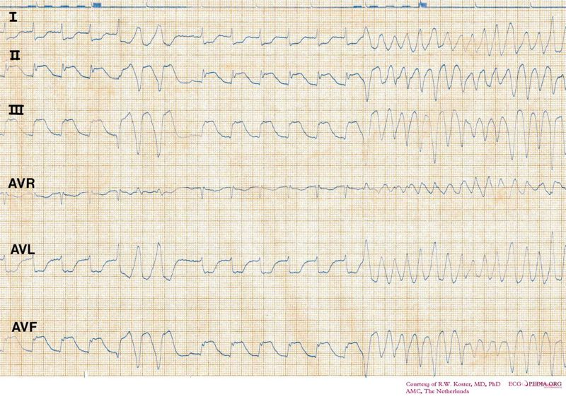 File:De-ECG SR to VF in INF MI.jpg