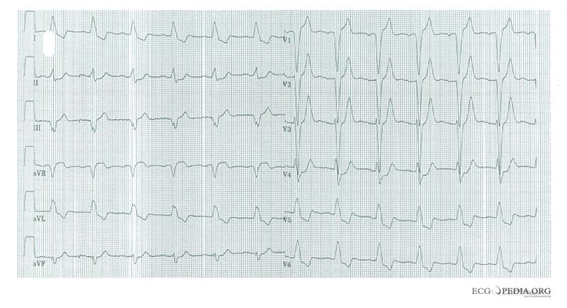 File:De-LBBB with AMI.jpg