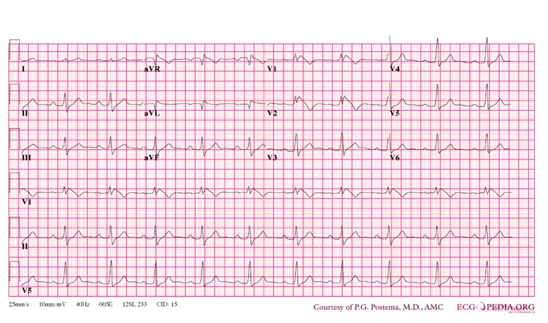File:De-Brugada syndrome type1 example3.png