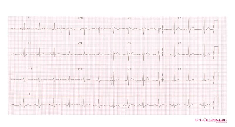 File:De-Brugada syndrome type2 example2.jpg