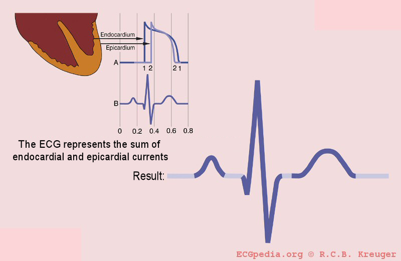 Epi_endo_en basics ecgpedia ecg diagram at aneh.co