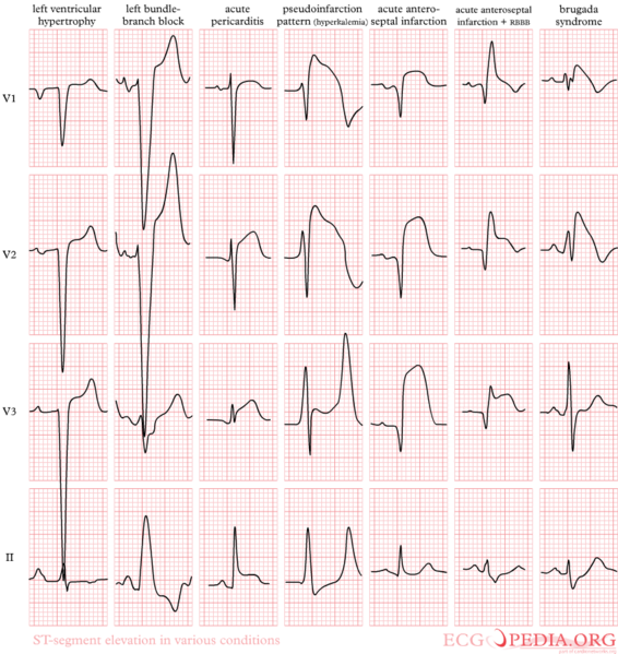 File:De-Pathologic ST elevation.png