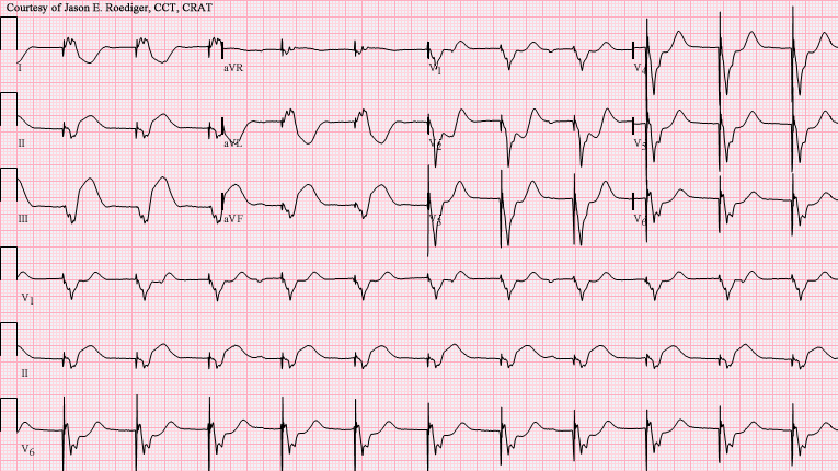 File:V-paced with acute IWMI.png