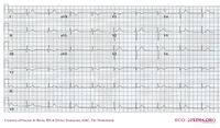 Arrhythmia prone