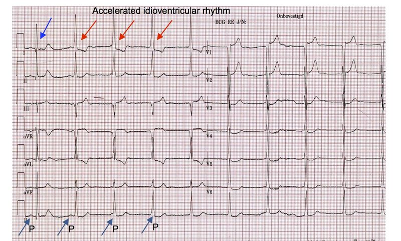 Answer Case Of The Month July 2014 Ecgpedia