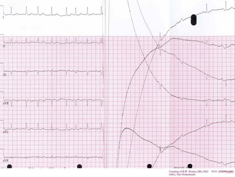 File:Cardioversion from afib.jpg