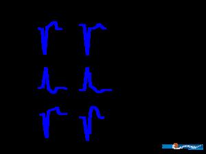 Mi Diagnosis In Lbbb Or Paced Rhythm Ecgpedia