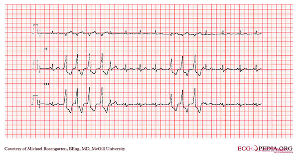 graphic relating to Printable Ekg Strips named McGill Circumstance 84 - ECGpedia