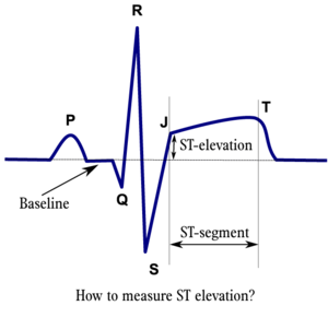 ST Morphology ECGpedia - Elevation measurement